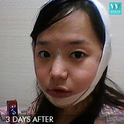 짱이뻐! - Thanks to Korean Face Contouring, It's Not A Nightmare Anymore