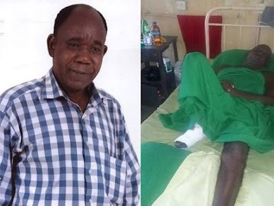 Veteran actor Tunde Alabi loses a leg