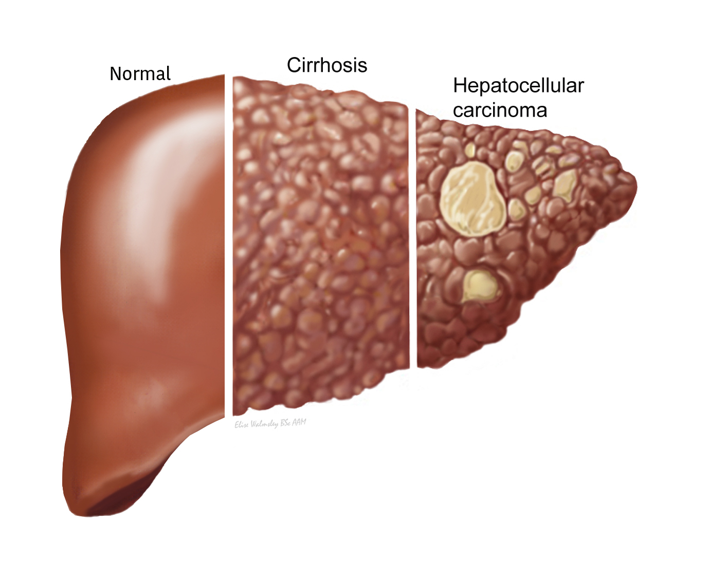 diazepam effects on the liver