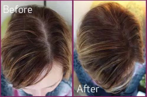 Regrow Hair before after