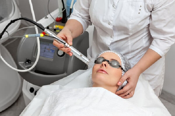 Things To Keep In Mind When Choosing Laser Resurfacing Treatment