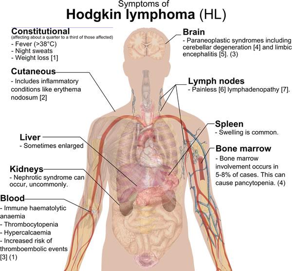 Symtoms of Hodgkin lymphoma