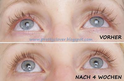 RevitaLash - Advanced Wimpernserum Eyelash Conditioner, Wachstumsserum Wimpern, Lashes, long lashes, vorher nachher, before after