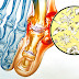 Health Definition: What is Gout?