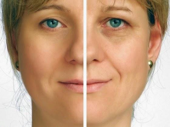 10. Natural Home Remedies For Sagging Skin