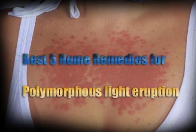 Polymorphous Light Eruption Treatment Natural