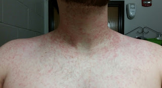 Rashes appear nine days after taking wellbutrin pictures