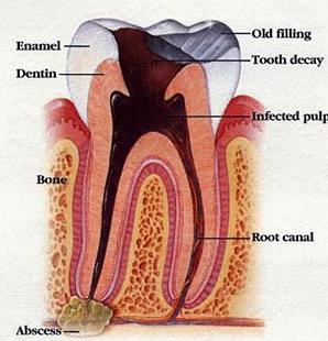 Mengatasi rasa nyeri akibat infeksi akar gigi dengan pijat refleksi
