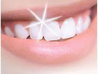 Cara Paling Mudah Supaya Gigi Kita Bisa Putih