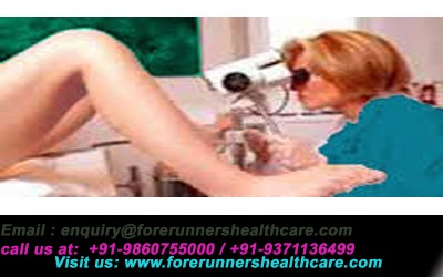 Cervical Cancer Treatment and Surgery in India