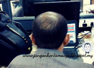 Info tentang Keguguran Rambut