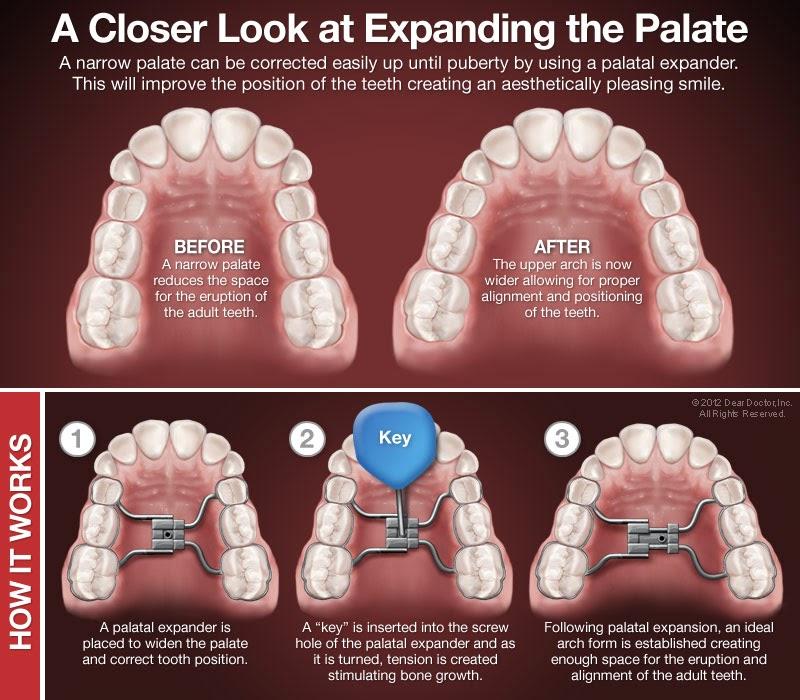 Um, Thanks For Sharing!: The Orthodontic Journey Begins