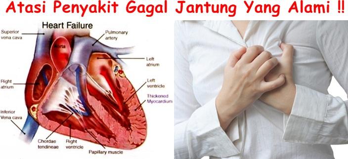 Obat Tradisional Tuntaskan Gagal Jantung