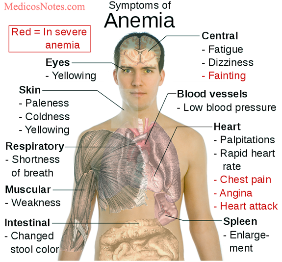 What are the systemic manifestations of anemia ?