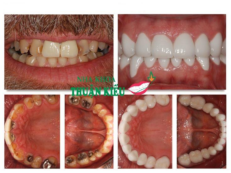 cay-ghep-rang-implant-uy-tin-nha-khoa-thuan-kieu-tphcm-2018-14