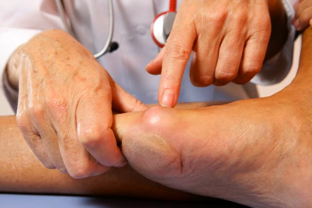 enfermedades por el acido urico alimentos para reducir niveles de acido urico como bajar la inflamacion de los pies por acido urico