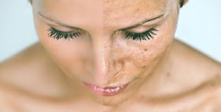 6 Cara Menghilangkan Flek Hitam di Wajah Yang Membandel