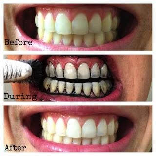 cara alami memutihkan gigi dengan arang kayu