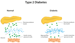 Type 2 Diabetes - Weight Loss Can Be Tied to When You Eat As Well As A Calorie Reduction