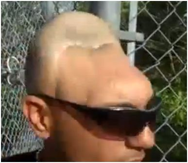 Half Head Man (REAL)