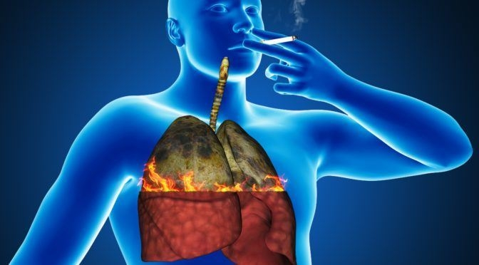 Best lung cleanser for smokers to fight cancer