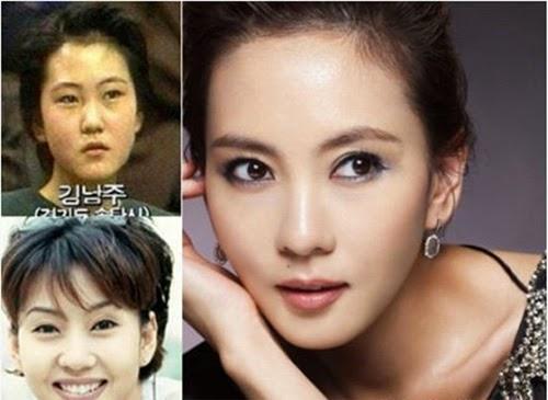 пышных фотографии корейских звезд до и после пластики краснодаре сочи продолжается