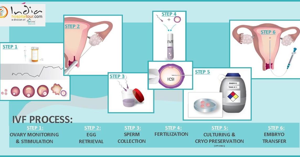 diazepam ivf procedure step