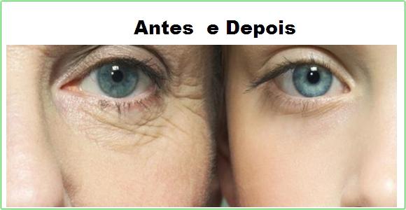 Oxinova Antes e Depois