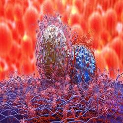 Novo exame de sangue para oito canceres comuns