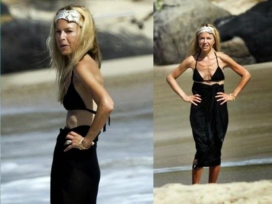 rachel zoe: tubuh selebriti terburuk di pantai