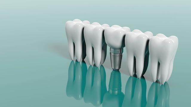 Dental İmplant Tedavisi Ne Kadar Sürer