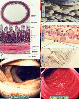 Perlunya Detoskifikasi Untuk Tubuh Kita