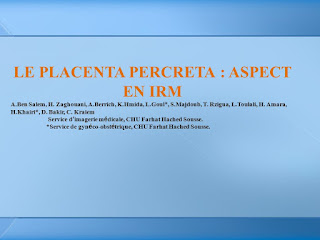 LE PLACENTA PERCRETA : ASPECT EN IRM.pdf