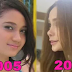 LOOK: Arci Muñoz Plastic Surgeries Through The Years!