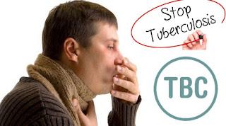 Inilah Gejala Dan Penyebab Dari Penyakit Tbc
