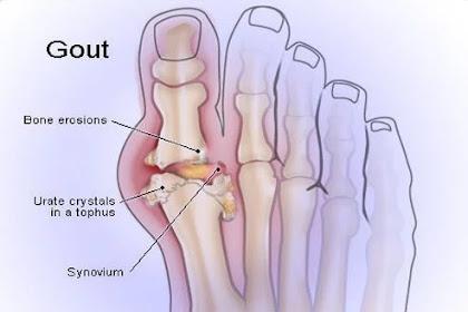 Penyebab Gejala Penyakit Asam Urat (Gout)