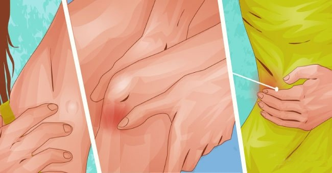 Skin Cancer Symptoms That People Need To Pay Attention To