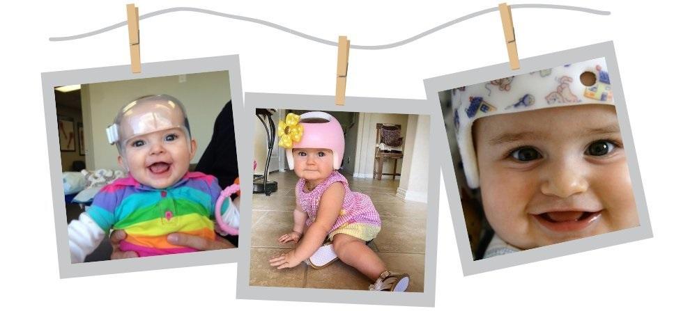 фото детей с асимметрией черепа в коррекционных шлемах