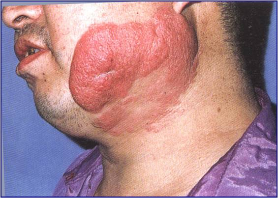 Tumors Mycosis Fungoides