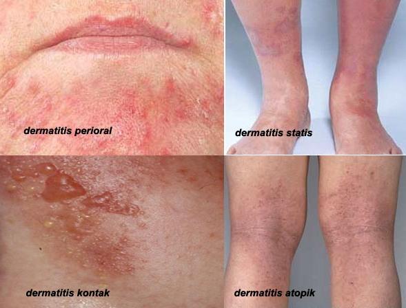 Nama Obat Dermatitis Di Apotik