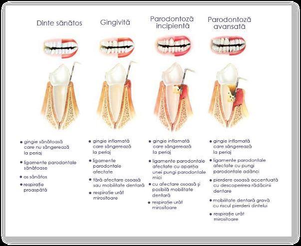 Parodontoza - cauze, tratament, paste de dinti recomandate