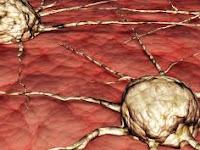 Pengobatan Alternatif Sakit Kanker