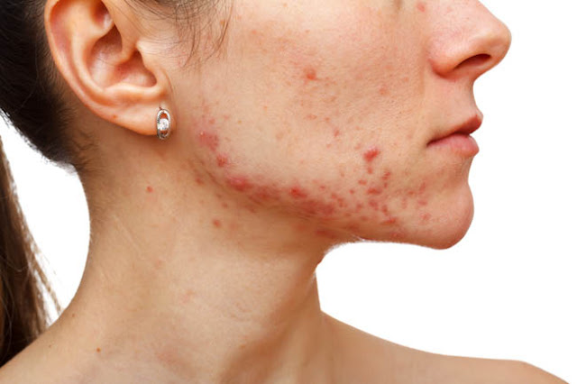 Why Is It Compulsory to Get Down to the Root Cause of Acne