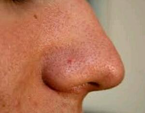 Cara alami menghilangkan komedo pada hidung