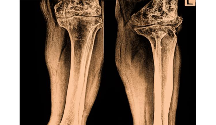 Obat kanker tulang alami