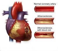 obat penyakit jantung 081227666620