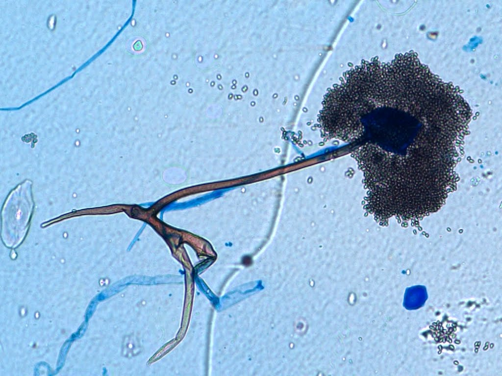 Fun With Microbiology (What's Buggin' You?): Rhizopus speciesRhizopus Sporangia