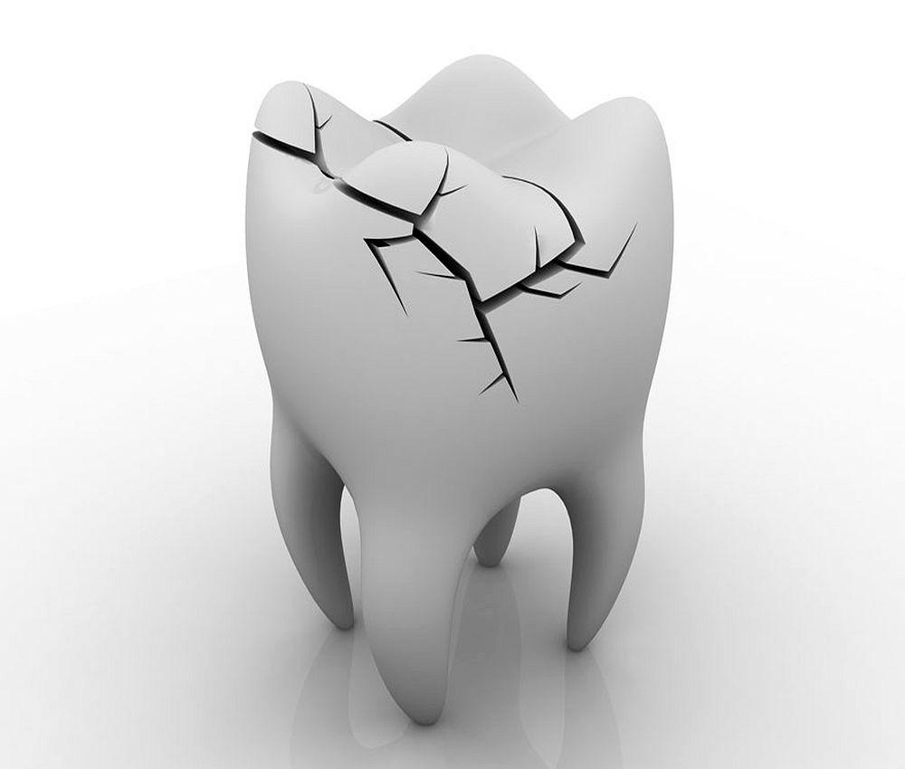 dental-trauma