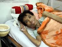 Gambar Penderita Hiv Aids Yang Menakutkan