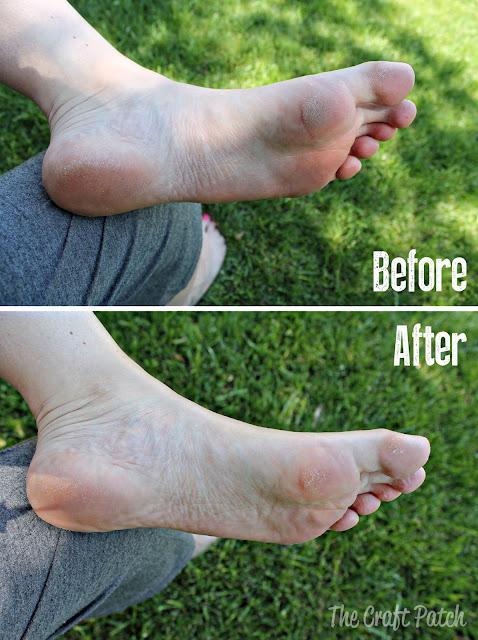 Listerine Foot Soak Recipe